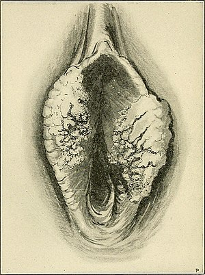The Principles and practice of gynecology - for students and practitioners (1904) (14581300578).jpg