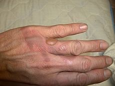 Thermal Injury in Chatama's hand.jpg