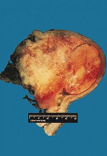 Mixed Mullerian Tumor Wikipedia