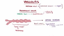 File:Vasculitis video.webm