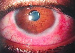 keratoconjunctivitis sicca icd 10