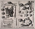 A double sheet showing various ophthalmology instruments, ey Wellcome V0016255.jpg