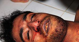 Death of Ali Abdulhadi Mushaima - Ali Mushaima's body at the morgue