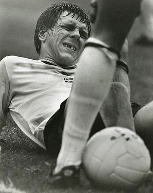 Graham Roberts - English FA cup final, 1981. Here is Tottenham's Graham Roberts who lost three teeth, but who nonetheless refused to leave the field.