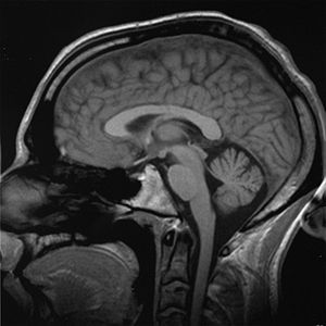 An MRI scan of a human head, an example of a  ...