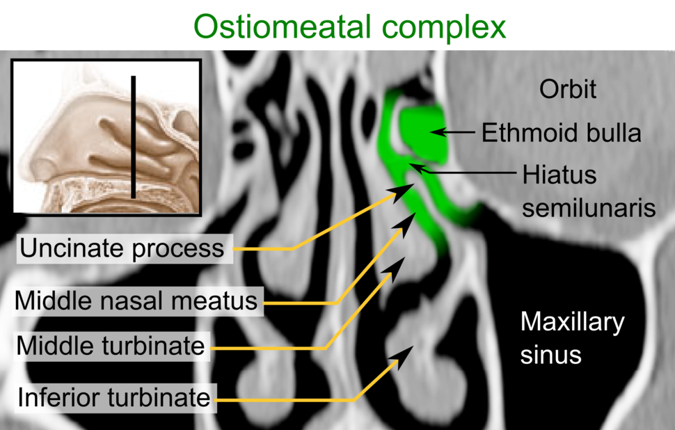 CT of the ostiomeatal complex, coronal plane, with annotations