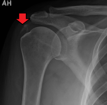 Calcific tendinitis - Wikipedia