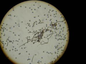 Sordariales - Chaetomium sp.
