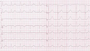 qi-klim sergant hipertenzija kaip sužinoti, kokia mano hipertenzijos stadija