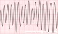 De-Rhythm flutter (CardioNetworks ECGpedia).png