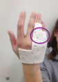 Hand Orthosis-Fit before straps (Dorsal Surface).png