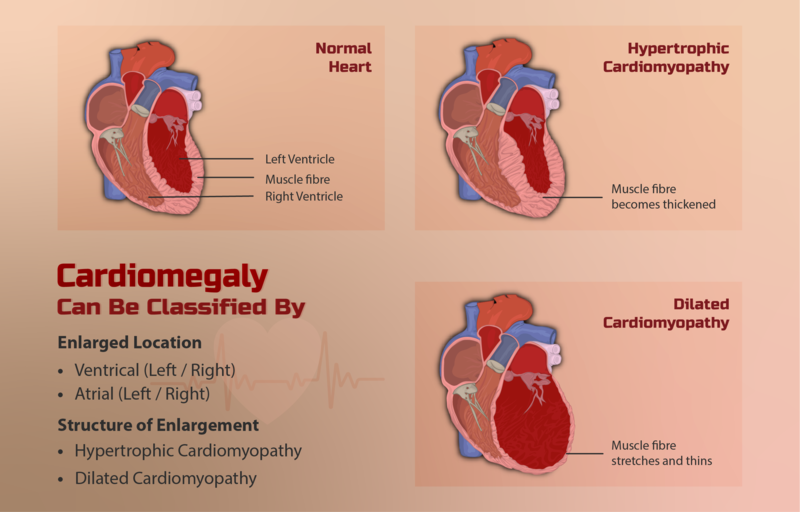 File:Illustration of an enlarged heart (Cardiomegaly).png