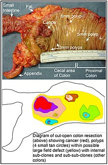 Colorectal Cancer Wikipedia
