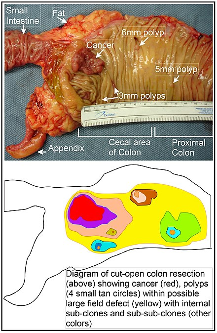 Longitudinally opened freshly resected colon segment showing a cancer and four polyps. Plus a schematic diagram indicating a likely field defect (a region of tissue that precedes and predisposes to the development of cancer) in this colon segment. The diagram indicates sub-clones and sub-sub-clones that were precursors to the tumors. Image of resected colon segment with cancer & 4 nearby polyps plus schematic of field defects with sub-clones.jpg