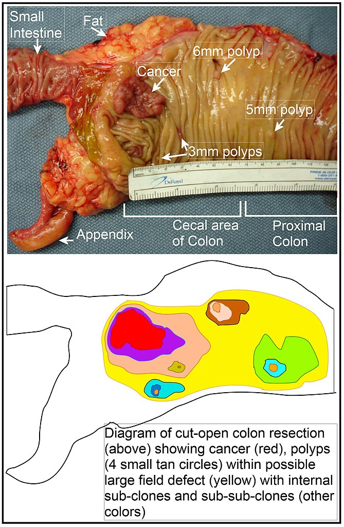 Fileimage Of Resected Colon Segment With Cancer 4 Nearby Polyps