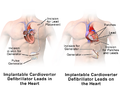 Implantable Cardioverter Defibrillator Leads Placement.png