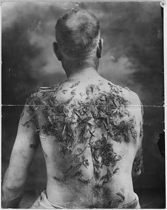 Tarring and feathering - German-American farmer John Meints of Minnesota was tarred and feathered in August 1918 during World War I for allegedly not supporting war bond drives. Minnesota historians have cited this incident as an example of nativism and anti-German sentiment in Minnesota during World War I.