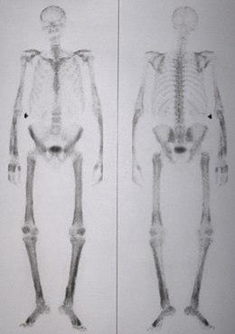 iperplasia prostatica benigna medicina per laccesso alla lombalgia