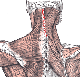 Nuchal ligament.PNG