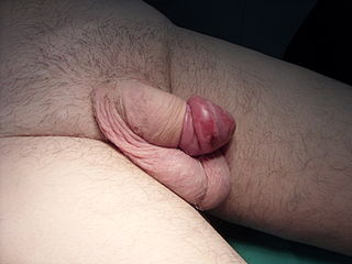 Paraphimosis medical condition in which the foreskin of a penis becomes trapped behind the glans penis