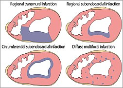 Patterns of topographic distribution of myocardial infarction.jpg