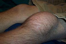 Prepatellar bursitis.JPG