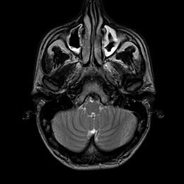 Sinusitis-MRI.jpg