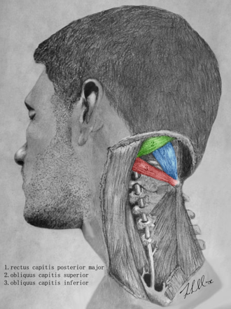 Suboccipital triangle - Artist depiction of the muscles that border the suboccipital triangle.
