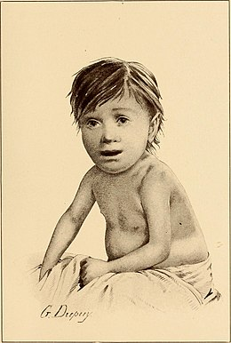 The diseases of infancy and childhood (1910) (14741111306).jpg