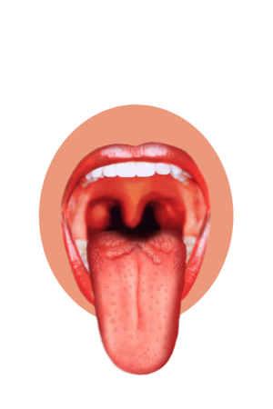 English: This is a tongue