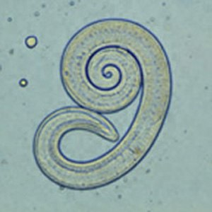 Trichinella spiralis - Image: Trichinella larv 1 DP Dx