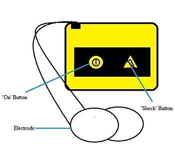 Defibrilator luaran automatik wikipedia bahasa melayu kelebihansunting sunting sumber ccuart Image collections