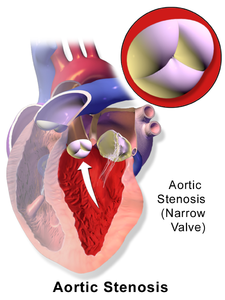 Aortální stenóza