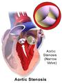 Blausen 0040 AorticStenosis.png