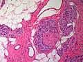 Breast ApocrineCarcinoma PerienuralInvasion MP CTR.jpg