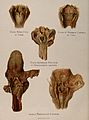 Diseased pharynxes & larynxes, 1897 Wellcome V0010328.jpg