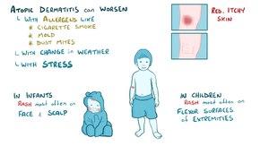 Dosiero: Eczema.webm