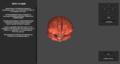 Gehirn kompakt Schritt 1.png