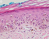 Histopathology of lentigo maligna.jpg