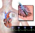 Implantable Defibrillator.png