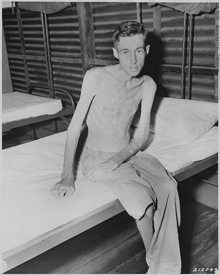 Prisoner of war exhibiting muscle loss as a result of malnutrition. Muscles may atrophy as a result of malnutrition, physical inactivity, aging, or disease. Japanese atrocities. Philippines, China, Burma, Japan - NARA - 292600.jpg