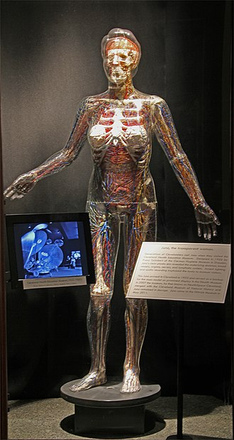 "Dittrick Museum of Medical History - Exhibit on the Cleveland Health Museum featuring Juno the ""invisible woman"" and historic photos from 1943 through the 1960s."