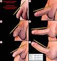 Male genital anatomy - penis erection states (Anatomie der männlichen Genitalien - Penis Erektionsstadien).jpg