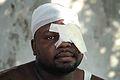 Man treated for facial burn at University Hospital, Port-au-Prince 2010-01-20.jpg