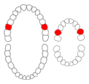 Maxillary first molar - Maxillary first molars of permanent and primary teeth marked in red.