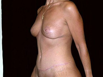 Excess skin - The same woman six months after undergoing an abdominoplasty and breast lift.