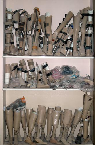 International Assistance Mission - Collection of artificial legs from the OWPC