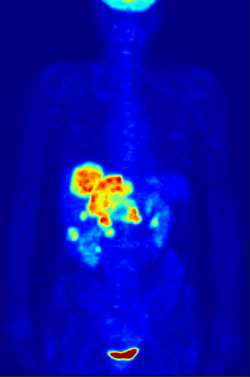 PET scan with radiopharmaceuticals