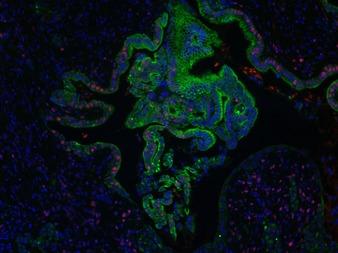 Pancreatic tumor.tif