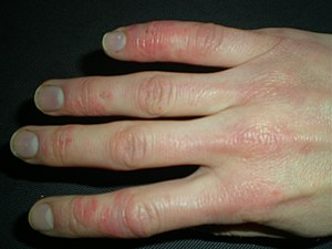 possible acute allergic cutaneous vasculitis